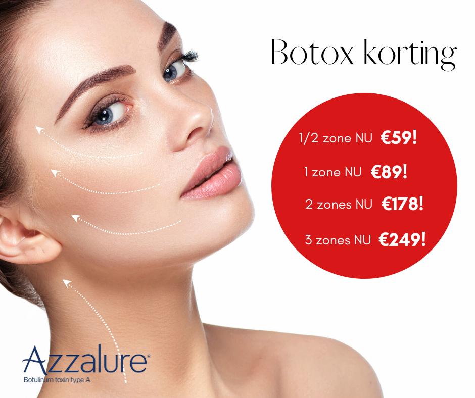 Betaalbaarmooier filler botox feestdagen actie